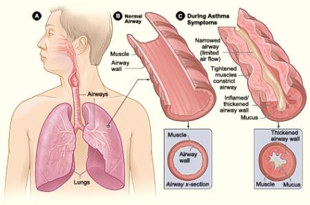 asthma diagram2